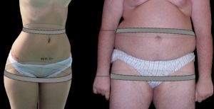 Image - how to measure waist to hip ratio